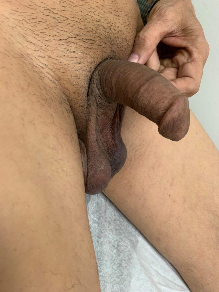 best penile implant